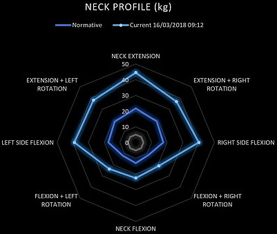Neck profile graph